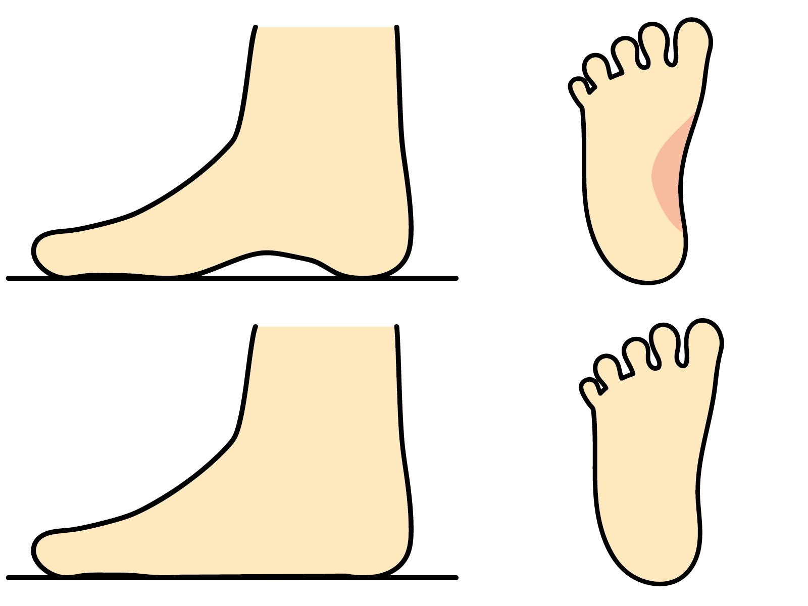扁平足の画像