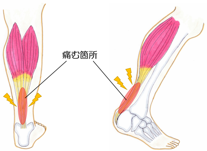 アキレス腱炎の画像