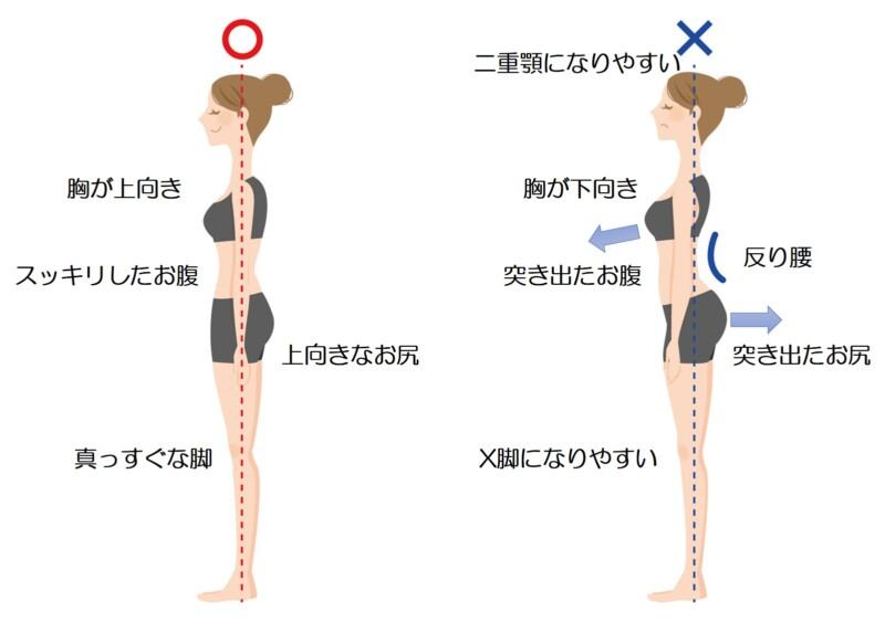 反り腰の画像