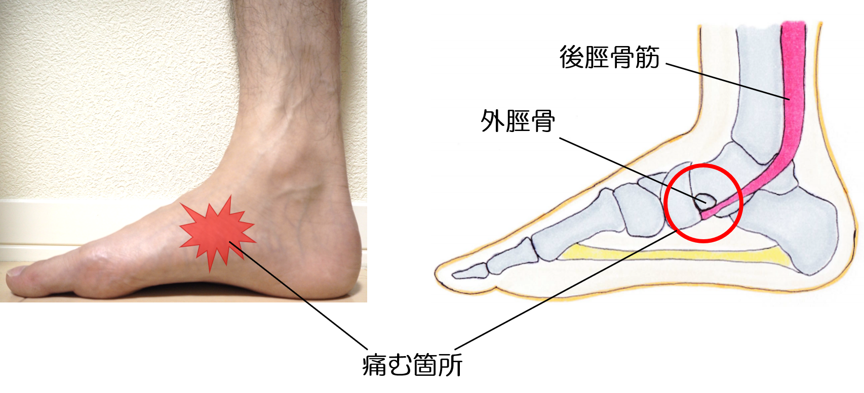 有痛性外脛骨の画像