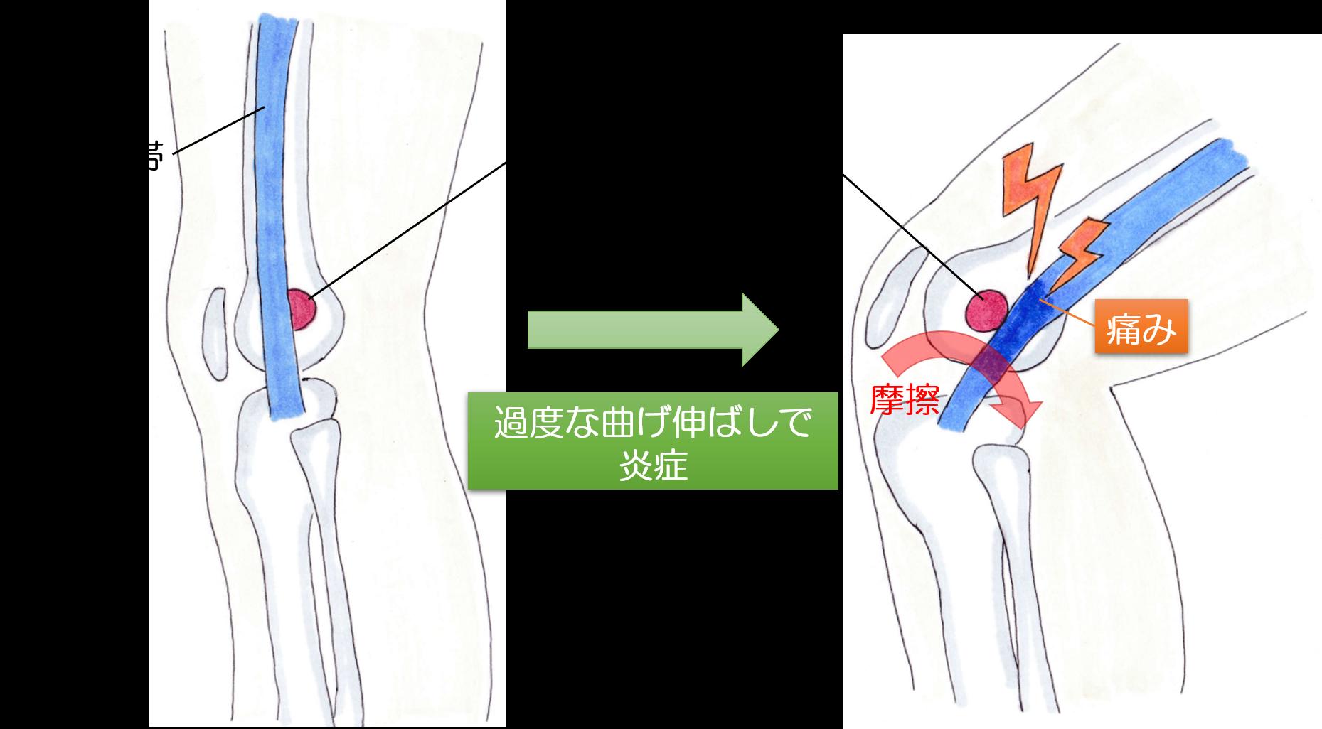 ランナー膝の画像