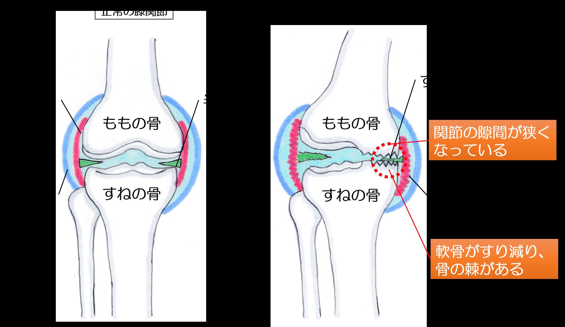 変形性膝関節症の画像