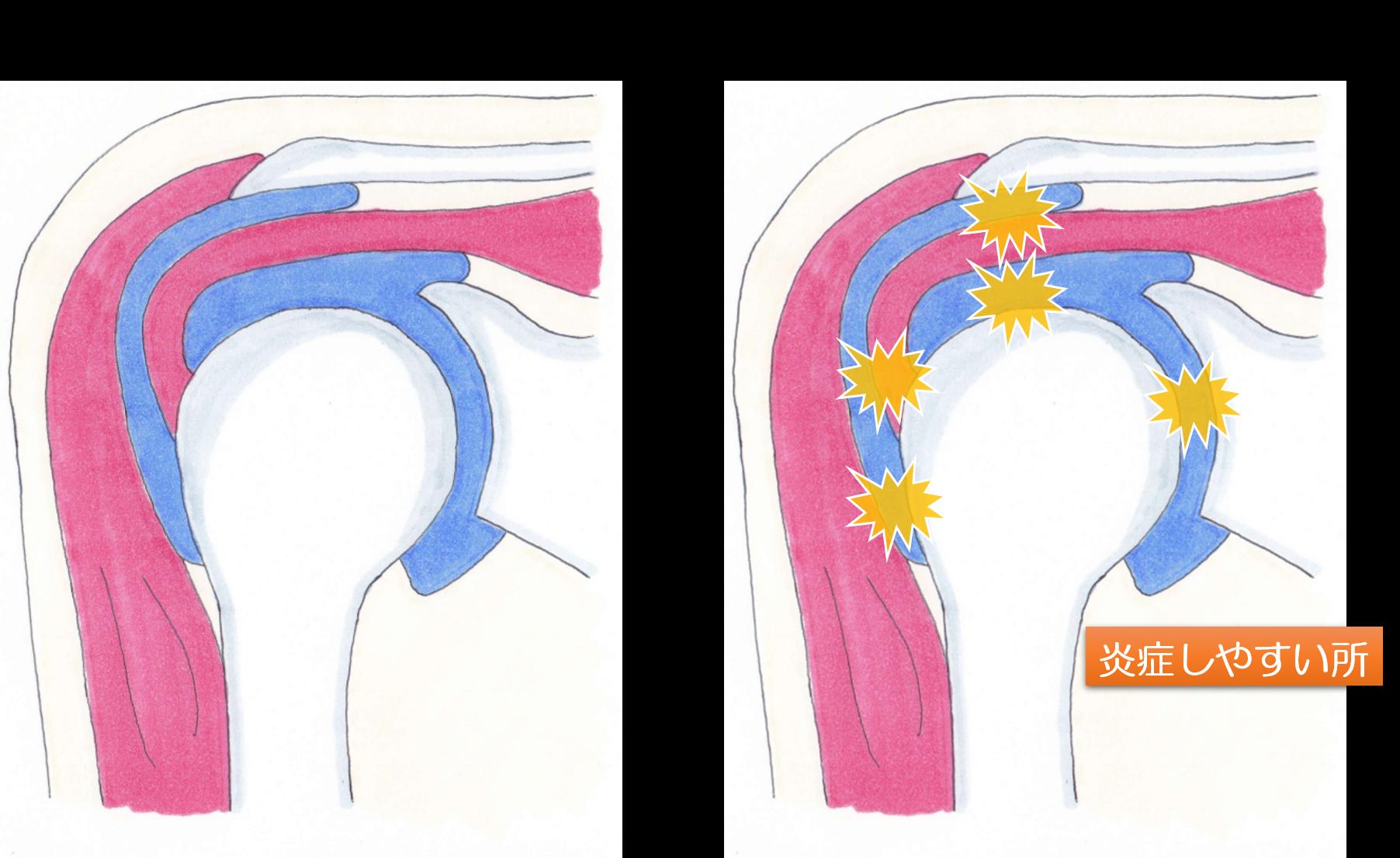 肩関節周囲炎の画像