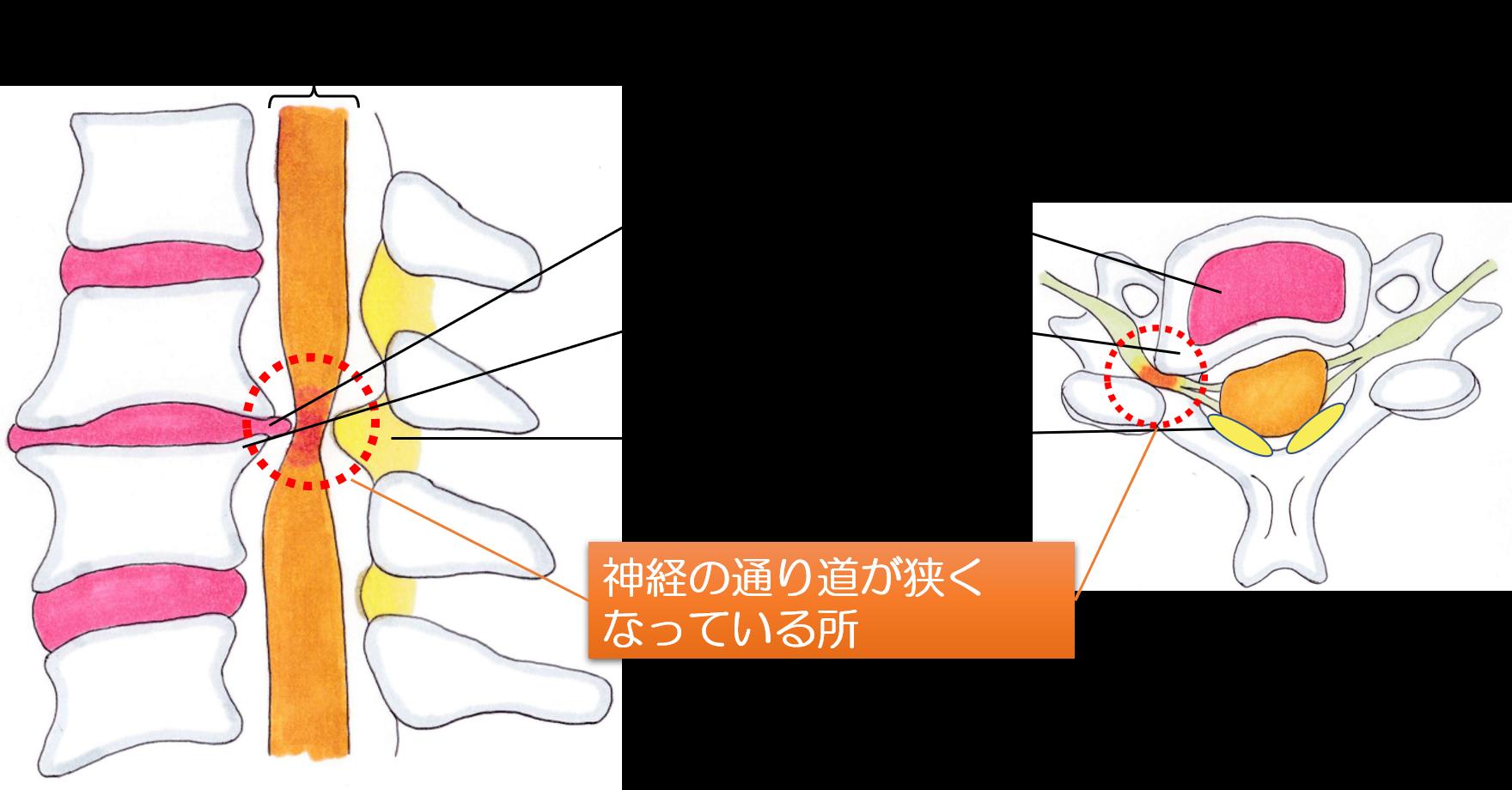 頚椎症性神経根症の画像