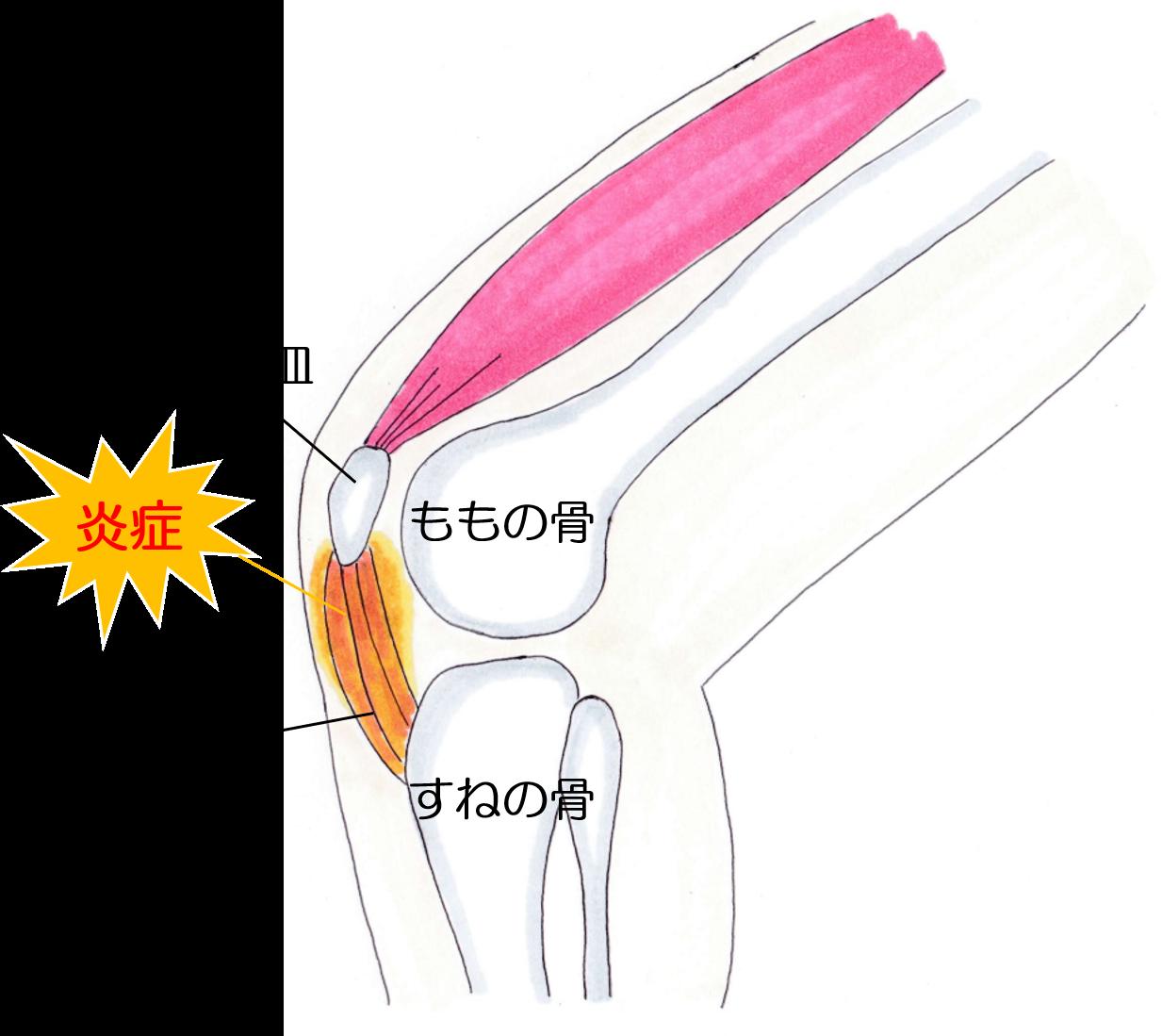 膝蓋腱炎の画像